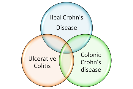 however, the treatment pathway is quite different  while surgery can cure  ulcerative colitis, it is only indicated in crohn's disease